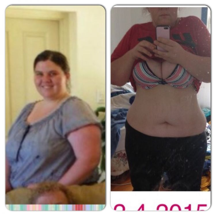 how to lose 20kgs with pcos