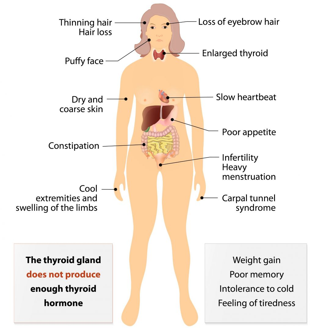 Post Partum Thyroiditis Explained Lose Baby Weight